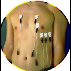 Electrodes 3M™ Red Dot™ - 2.2 x 3.2 cm